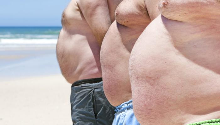 Ожирение.  Арсенал консервативной терапии. Когда консервативная терапия не эффективна. Липосакция и абдоминопластика:  за и против.