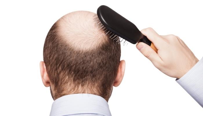 """Можно ли """"вернуть волосы"""" лишь коррекцией внутренних нарушений? Зачем нужен трихолог."""