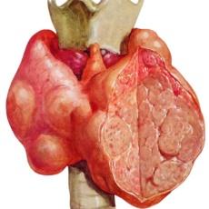 Хирургические vs терапевтические подходы к лечению заболеваний щитовидной железы. Могут ли договориться хирург и эндокринолог?