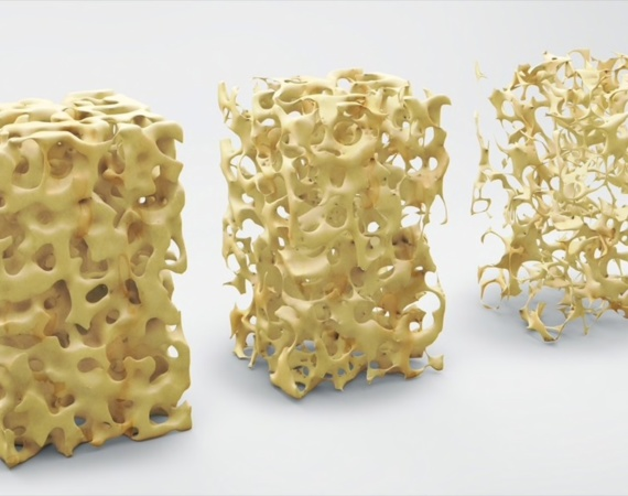 Американская ассоциация клинических эндокринологов обновила рекомендации по лечению постменопаузального остеопороза