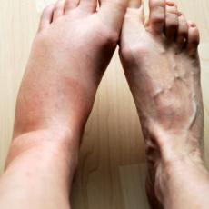Отёчный синдром как диагностический маркёр патологических состояний