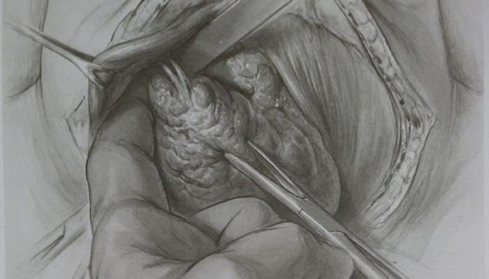Безопасная хирургия щитовидной железы. Насколько это возможно?