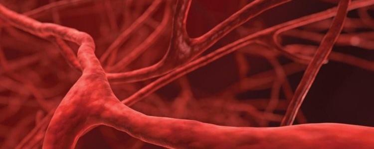 При болезни Педжета костей ухудшается эластичность сосудов