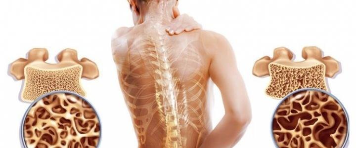 Прогестерон может использоваться для профилактики и лечения остеопороза