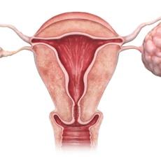 СПКЯ (синдром поликистозных яичников): диалог гинеколога и эндокринолога
