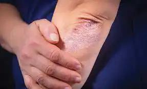 Псориаз повышает риск COVID-19